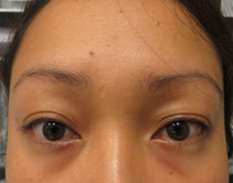 permanent eyebrow procedure ma