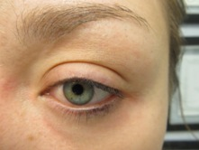 permanent eyebrow procedure