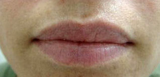 Edda Garcia Permanent makeup Lip Liner Procedure
